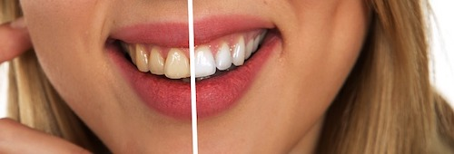 Before and After Whitening