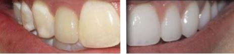 Whitening Before and After Example 2